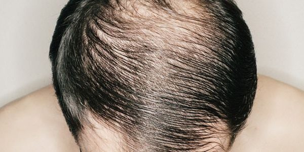 Hair Restoration Prices - Are They Really Costly