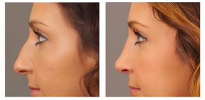 Guide for a Perfect and Safe Rhinoplasty