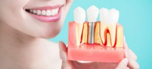Bruxism What are the Treatment Options Available