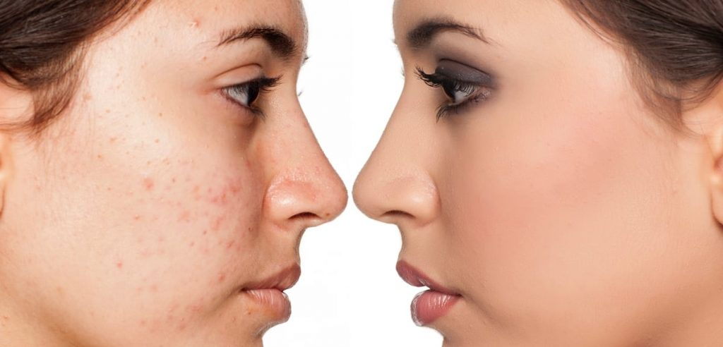 What is the importance of acne treatment