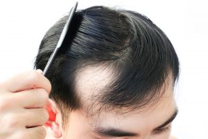 How Necessary Is Biotin For Hair Growth?